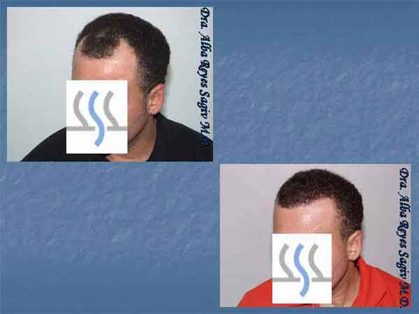 Hair Transplant Case Study A1011
