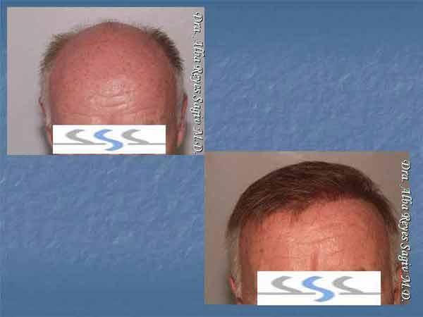 Hair Transplant Case Study A1012
