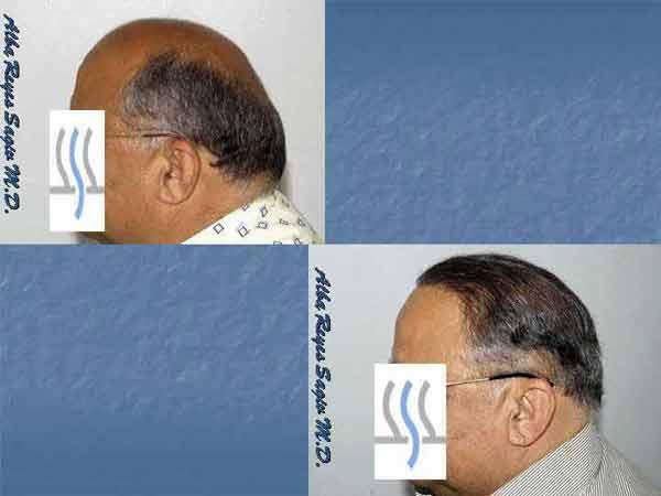Hair Transplant Case Study A1013