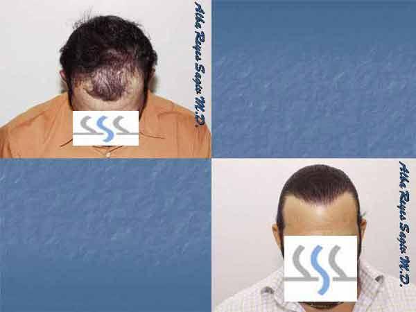 Hair Transplant Case Study A1014