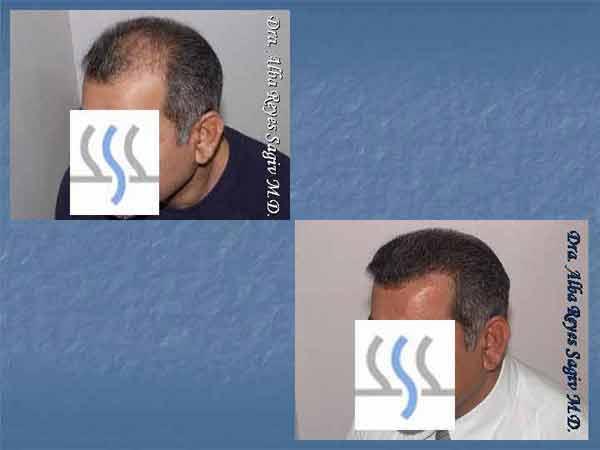 Hair Transplant Case Study A1001