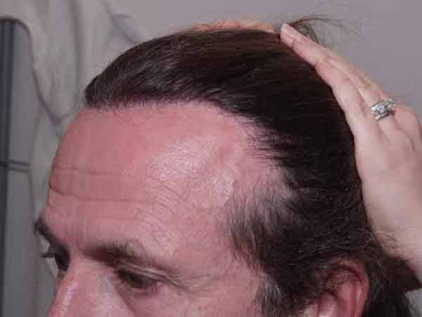 Hair Transplant Case Study A1002