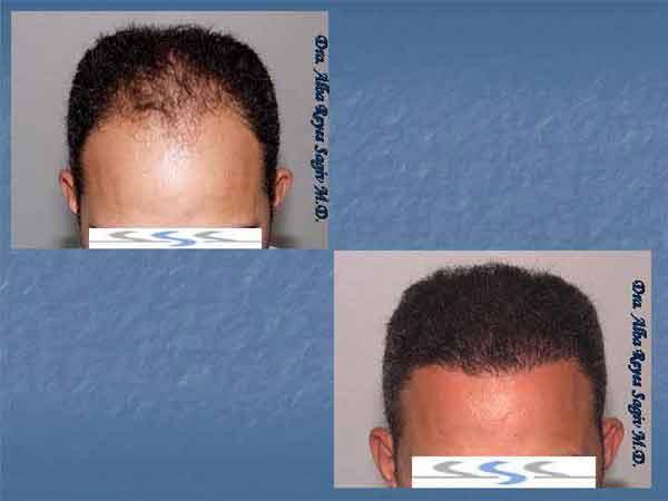 Hair Transplant Case Study A1003