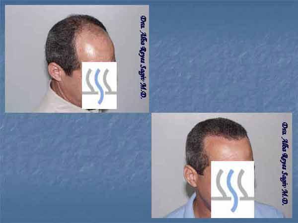 Hair Transplant Case Study A1004
