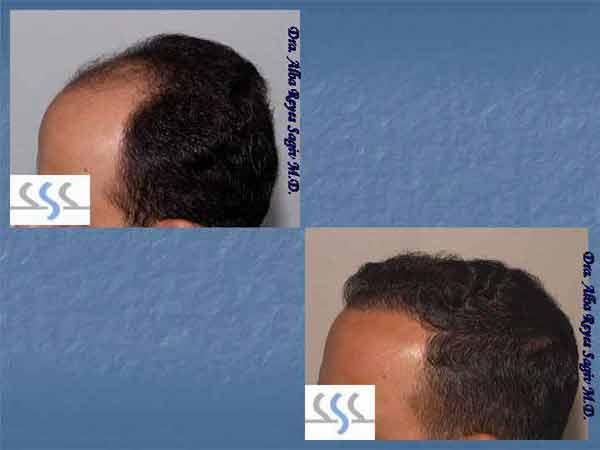 Hair Transplant Case Study A1005