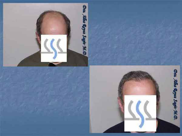 Hair Transplant Case Study A1006