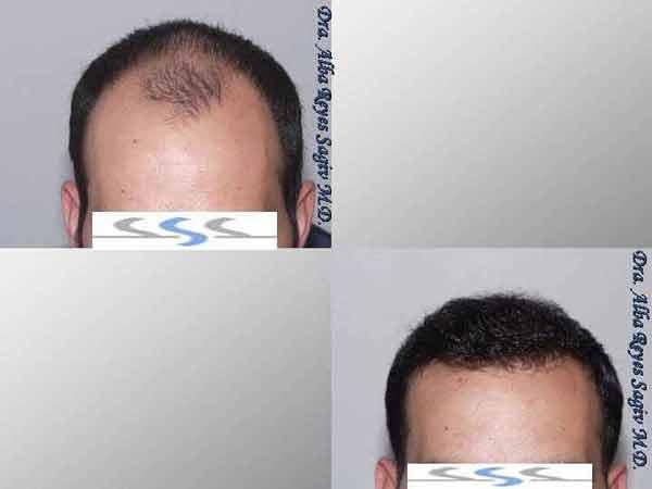 Hair Transplant Case Study A1007