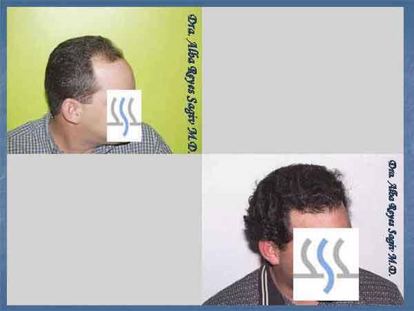Hair Transplant Case Study A1008