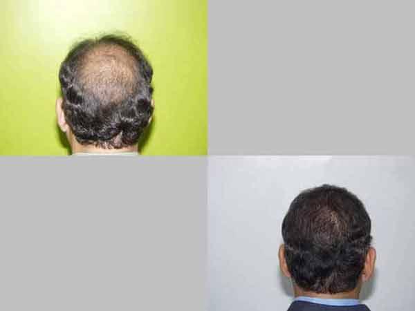 Hair Transplant Case Study A1009