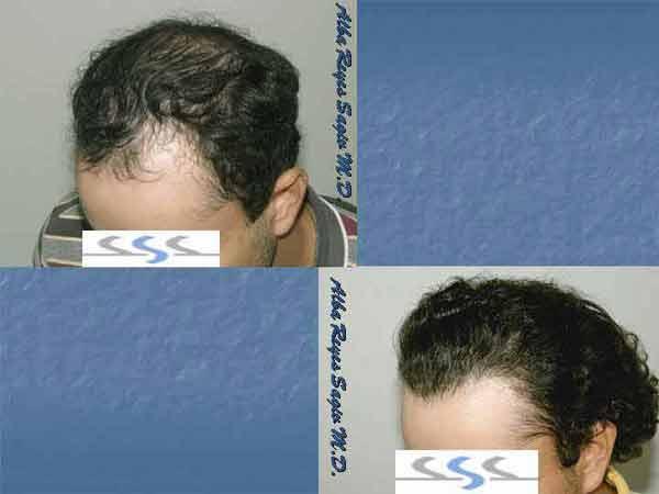Hair Transplant Case Study A1015