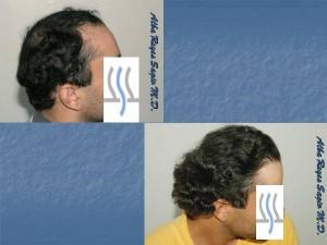 Ethnic Hair Transplant