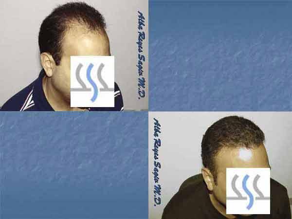 Hair Transplant Case Study A1016