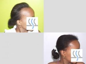 Recuperación del cabello femenino