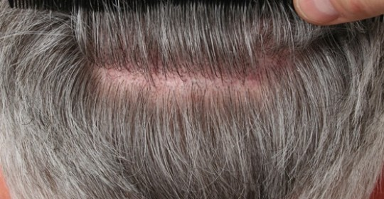 Hair Transplant Procedure & Donor Area