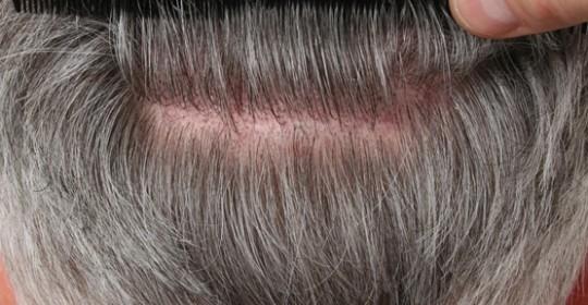 Hair Transplant Procedure & Donor Area