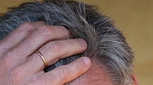 Does the hair transplant surgery generate scars?