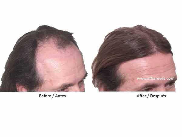 10 Reasons To Choose Us - Alba Reyes Sagiv Hair Trasplant