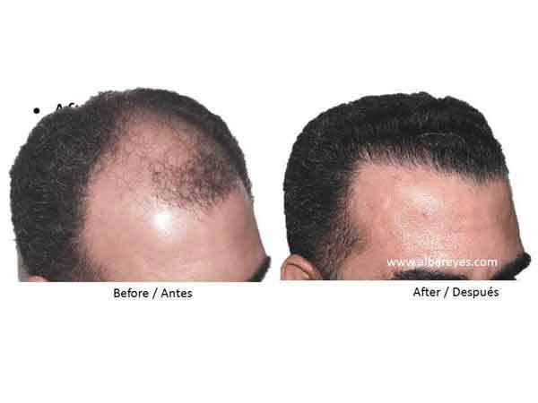 Alba Reyes Skin and Hair Transplant Institute